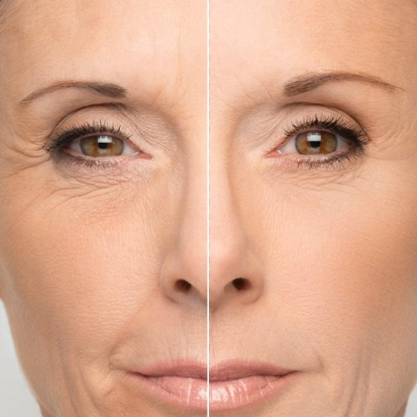 Ácido Hialurónico - RTB Cosmetics